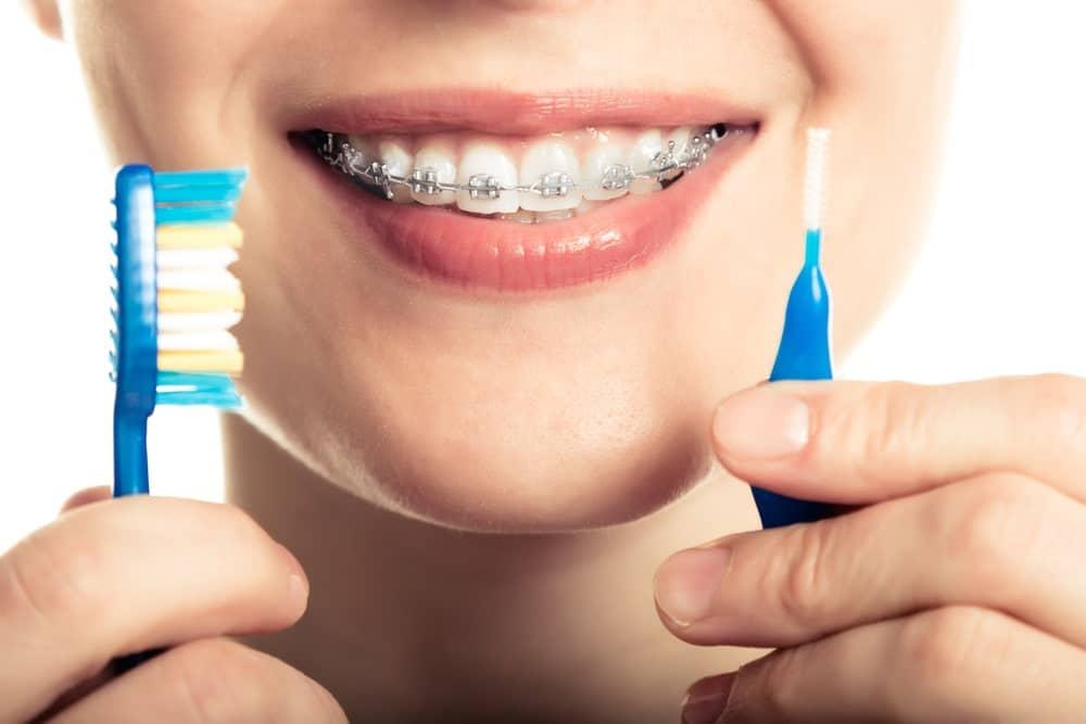 Reguli de igienă a aparatului dentar fix și mobil – periaj și igienizarea aparatului