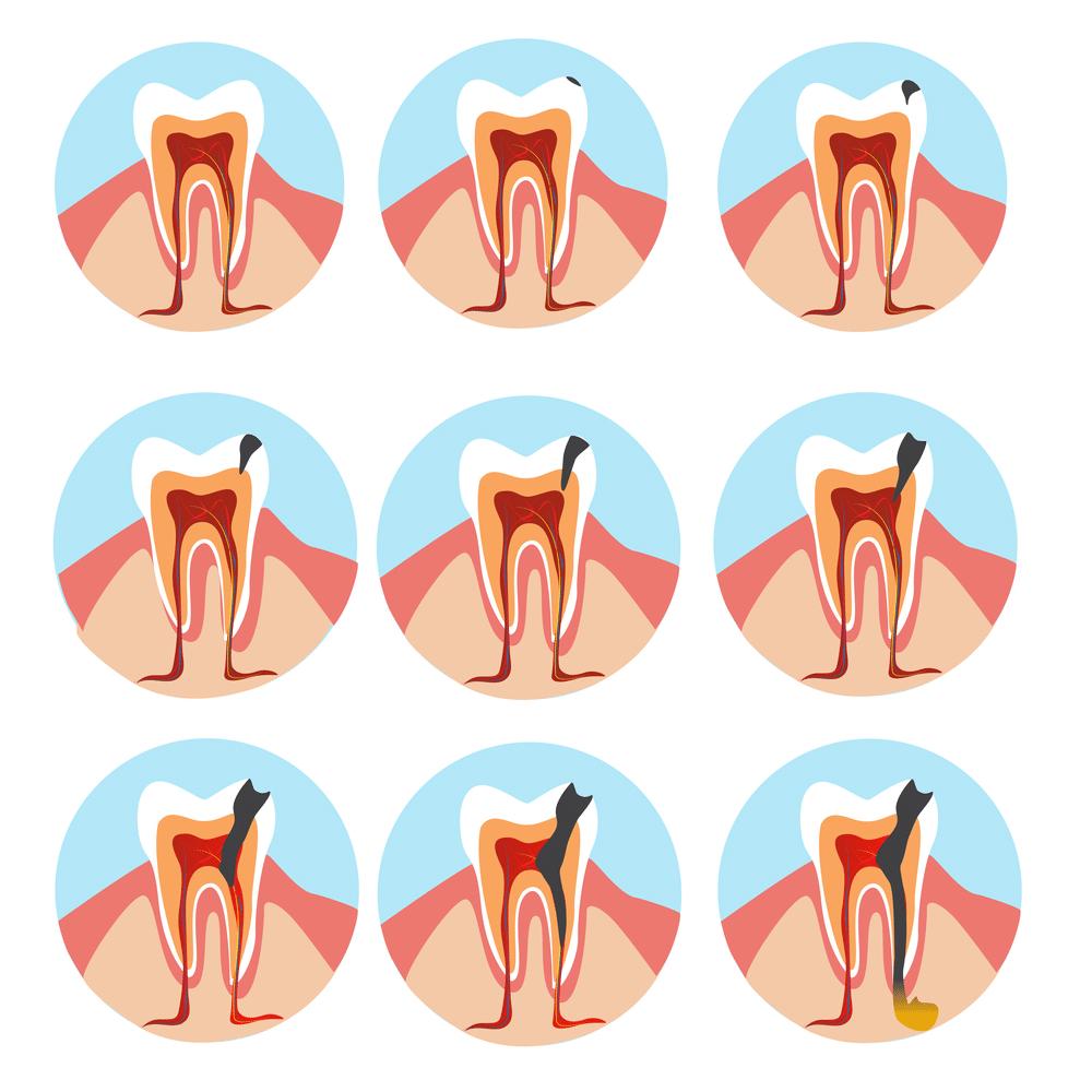 abcesul dentar - ce este